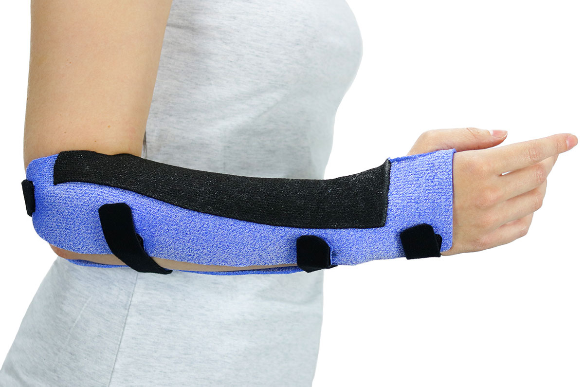 Arm with a black and blue colored Muenster Orthosis in Orficast More 30 cm.