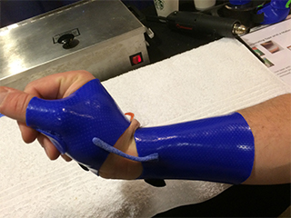 Fabrication of a hinged long opponens orthosis step 5