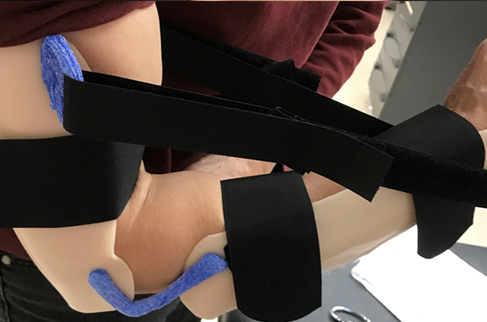 Woman wearing a thermoplastic static progressive elbow flexion orthosis.