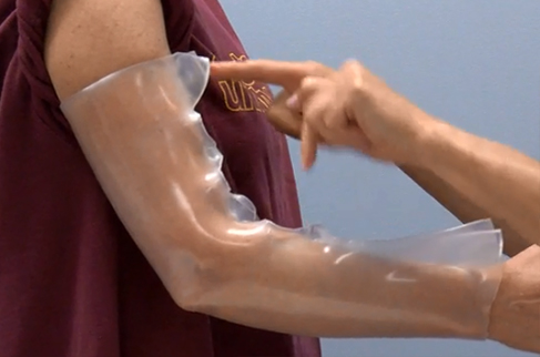 Process of moulding a thermoplastic elbow orthosis