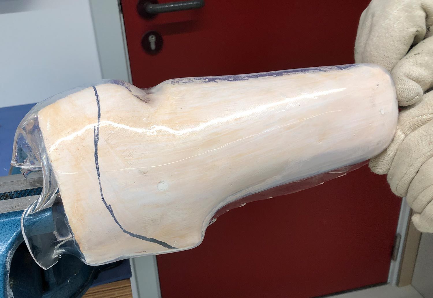 Two gloved hands moulding a transtibial prosthetic socket.