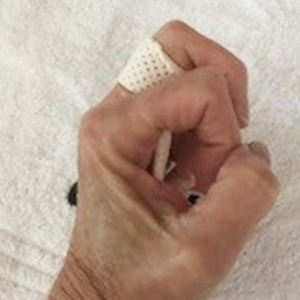 Fabrication of an MCP joint blocking orthosis for trigger finger