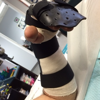 Dorsal view of a dorsal blocking orthosis