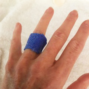 Orficast MCP Joint Blocking orthoses for trigger finger
